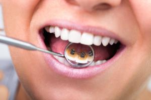 ortodonzia-monza