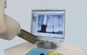 Radiologia dentale - Copia (2)