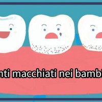 Denti macchiati 8 quar - Copia