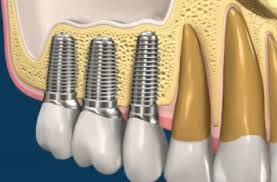 E28 - Implantologia