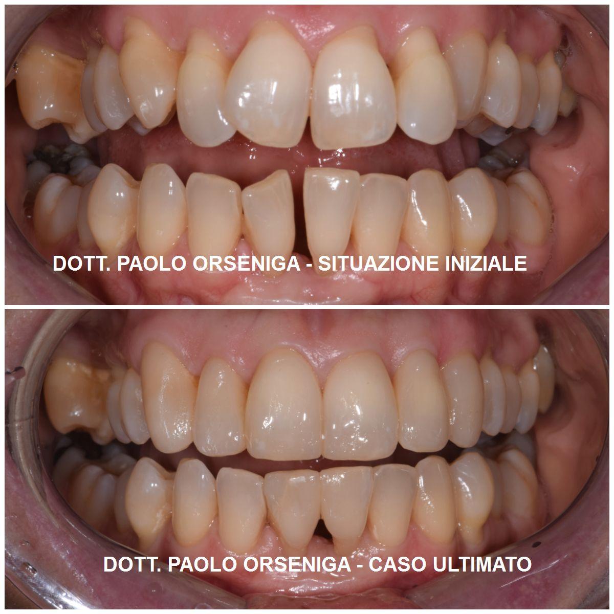 Autostima E Relazioni Sociali I Benefici Psicologici Di Un Bel Sorriso Studio Dentistico Orseniga Monza
